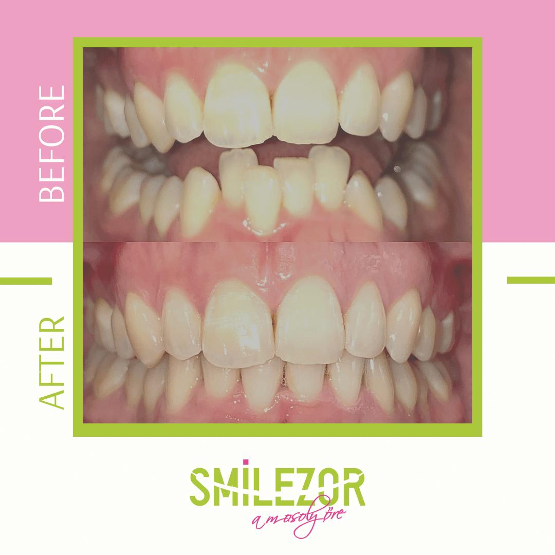 fogszabályozás előtt és után - Smilezor